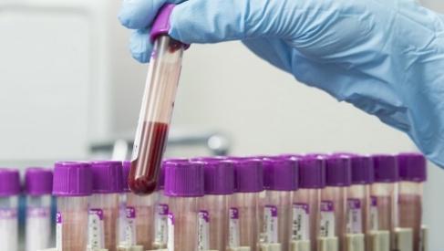 Частные лаборатории вБеларуси начали делать тесты наантитела ккоронавирусу. ВЛиде тоже